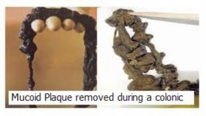 mucoid-plaue-during-colonic